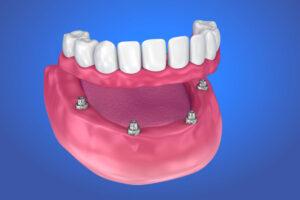 Teeth in a Day  - Rapid City Dentist